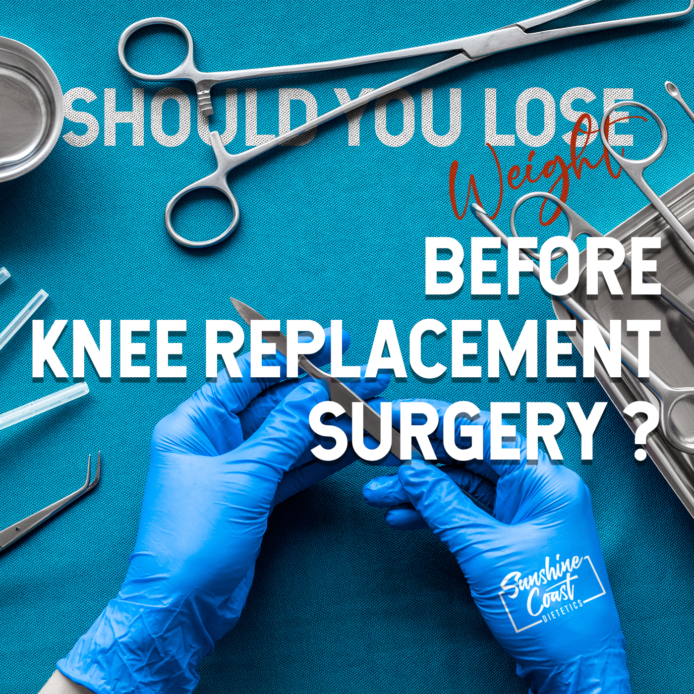 Should You Lose Weight Before Knee Replacement Surgery?