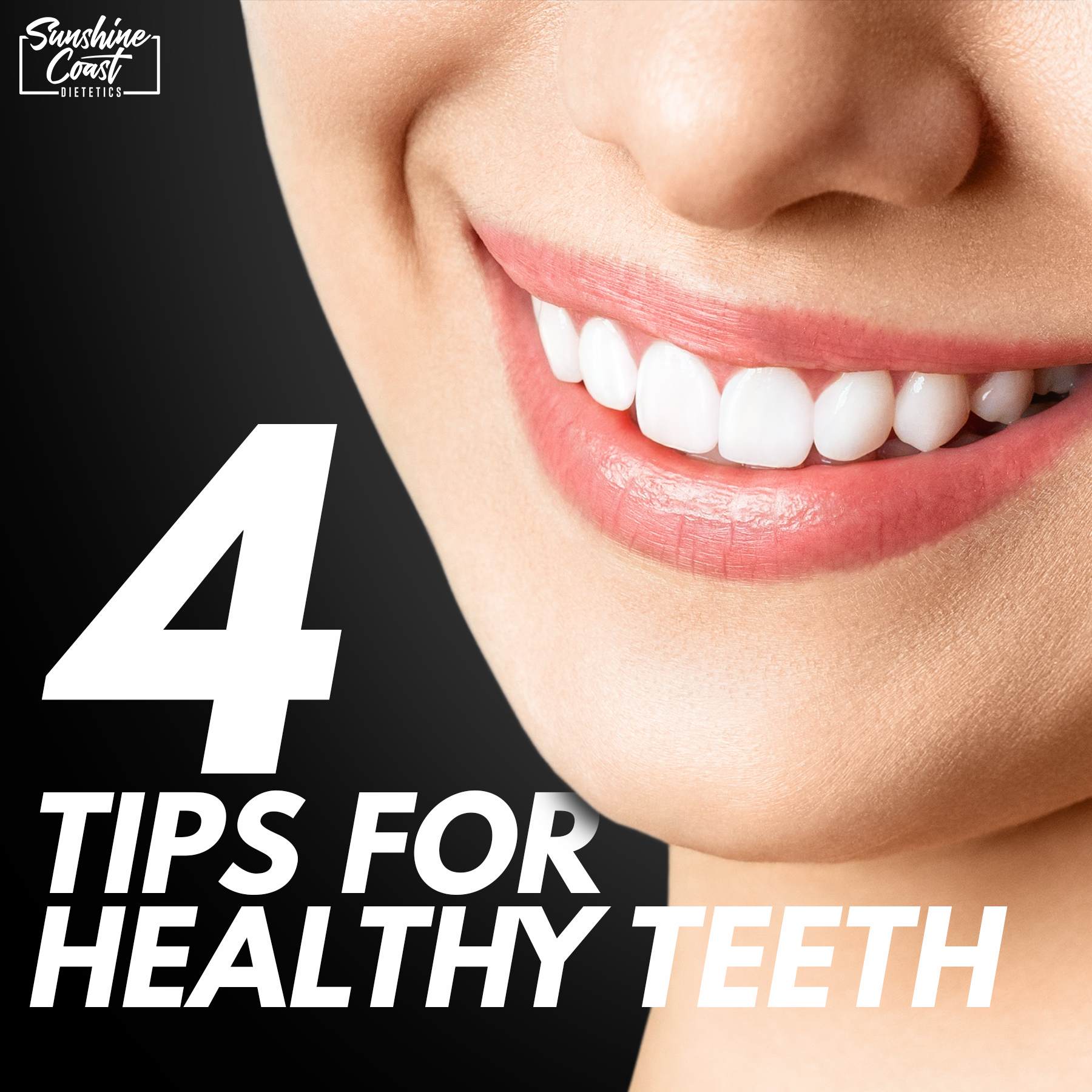 4 Tips for Healthy Teeth (That Aren't Cutting Out Sugar)